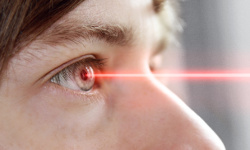 Laser Eye Surgery Turkey